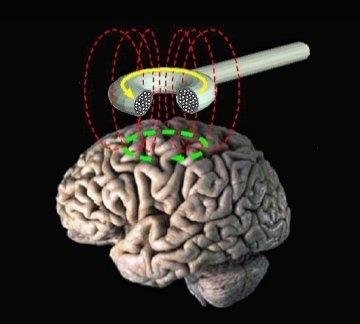 stimulation magntique transcranienne STM