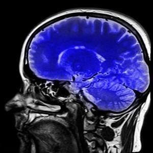 Dépression, trouble bipolaire  l'EPO améliorerait les symptômes cognitifs